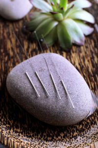 Acupuncture needles with spa stone on tray, closeup